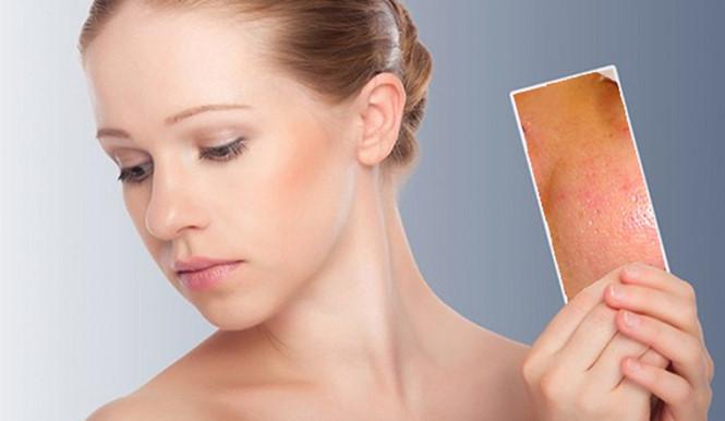 Rửa mặt đúng cách góp phần làm da sạch nhờn, giảm mụn
